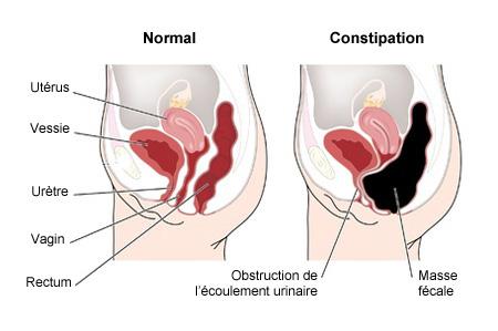 Constipation et homéopathie