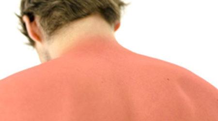 Allergie au soleil : symptômes, prévention et traitements